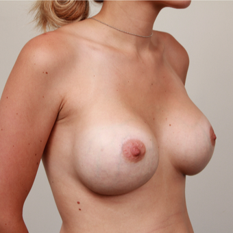 18-24 year old woman treated with Breast Implant Revision after 3075211