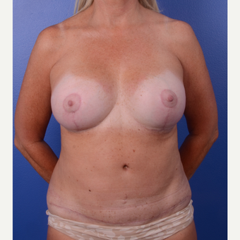 55-64 year old woman treated with Breast Lift with Implants after 3123468
