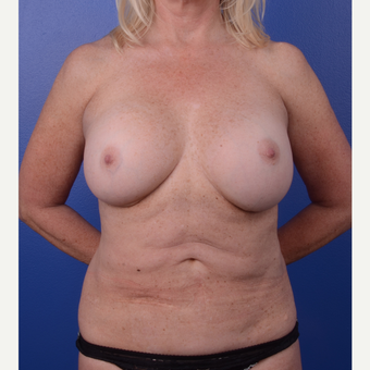 55-64 year old woman treated with Breast Lift with Implants before 3123468