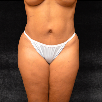35-44 year old woman treated with Tummy Tuck and Liposuction after 3036989