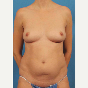 25-34 year old woman treated with Mini Tummy Tuck before 3787186