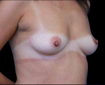 25-34 year old woman treated with Breast Augmentation before 3735140
