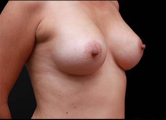 25-34 year old woman treated with Breast Augmentation after 3735140