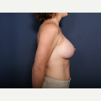 35-44 year old woman treated with Breast Lift with Implants (view 2 of 2) after 3099403