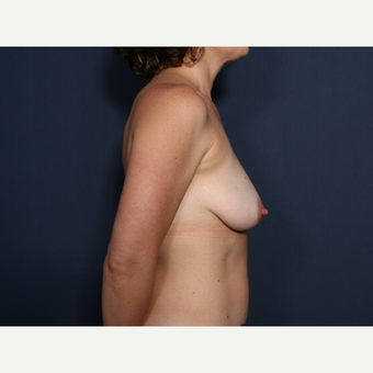 35-44 year old woman treated with Breast Lift with Implants (view 2 of 2) before 3099403