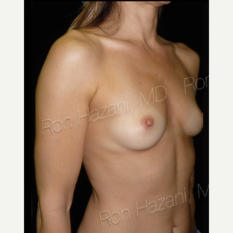 25-34 year old woman treated with Breast Augmentation before 3356158