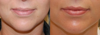 Lip Augmentation with Silikon-1000 before 119383