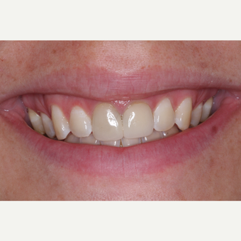 35-44 year old woman treated with Invisalign before 3676646