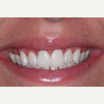 35-44 year old woman treated with Invisalign after 3676646