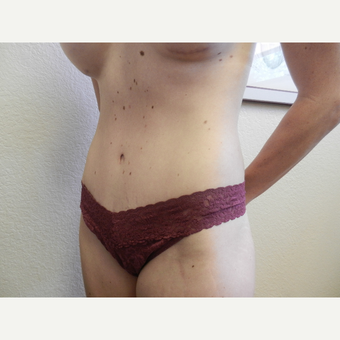 25-34 year old woman treated with Tummy Tuck after 3412846