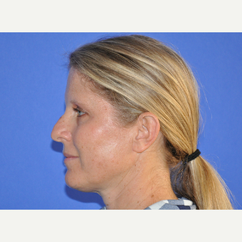 35-44 year old woman treated with Rhinoplasty before 3240124