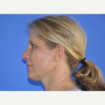 35-44 year old woman treated with Rhinoplasty after 3240124