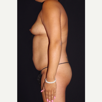 25-34 year old woman treated with Breast Implants and Buttock Augmentation before 3644284