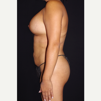 25-34 year old woman treated with Breast Implants and Buttock Augmentation after 3644284