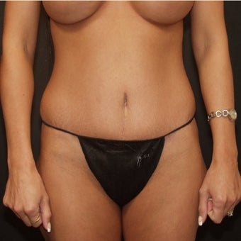 25-34 year old woman treated with Tummy Tuck after 2483988