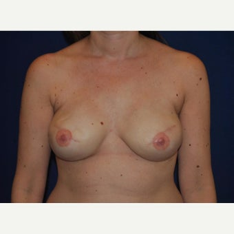 45-year old woman with Nipple Reconstruction after 2434978