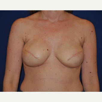 45-year old woman with Nipple Reconstruction before 2434978