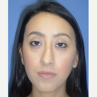 25-34 year old woman treated with Rhinoplasty before 3764670