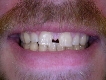 Large gap between front teeth corrected with crowns before 1168535