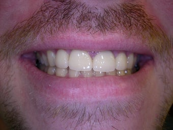 Large gap between front teeth corrected with crowns after 1168535