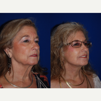 65-74 year old woman treated with Facelift and Necklift after 3659670