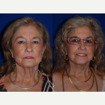65-74 year old woman treated with Facelift and Necklift before 3659670