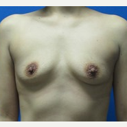30 year old woman 425cc and 450cc high profile silicone breast implants before 3370958