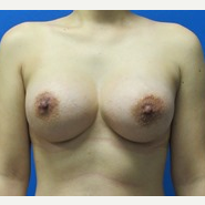 30 year old woman 425cc and 450cc high profile silicone breast implants after 3370958