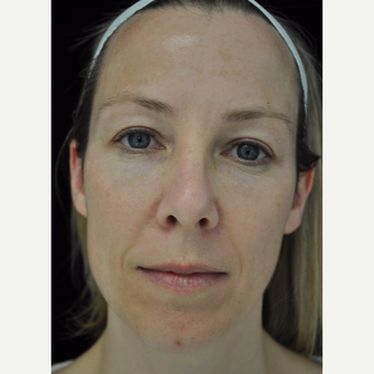 25-34 year old woman treated with IPL photofacial series before 3265921