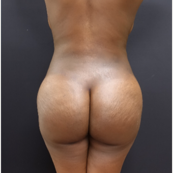 25-34 year old woman treated with Power-Assisted Liposuction (PAL) after 3363933