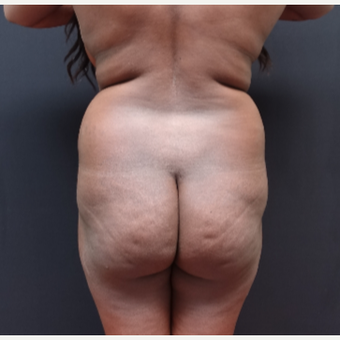 25-34 year old woman treated with Power-Assisted Liposuction (PAL) before 3363933