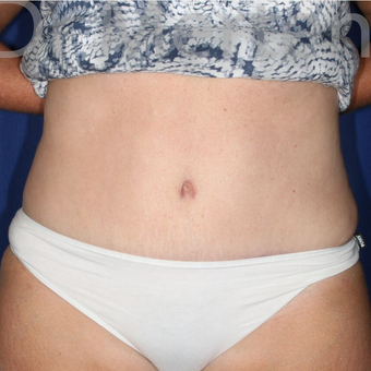 Tummy Tuck after 3599615