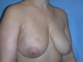 Breast Reconstruction before 1478585