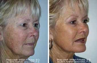 Facelift with dermabrasion before 91403