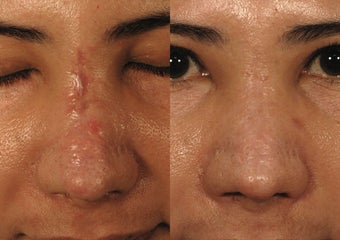 Sciton Profractional Laser Resurfacing for Traumatic Nose Scar before 1468572