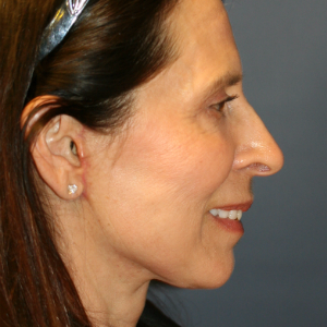 62 year old woman treated with Neck Lift, Lower Face Lift, and Laser Skin Smoothing after 2870034