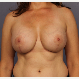 Breast Lift with gummy bear implants after 3645950