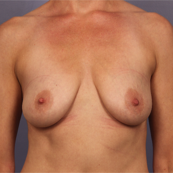 Breast Lift with gummy bear implants before 3645950