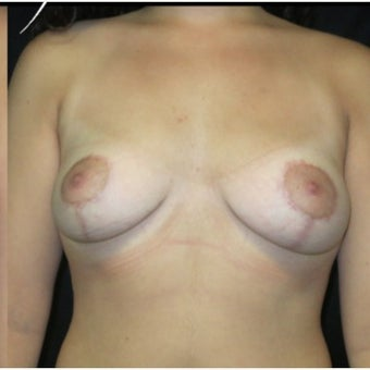 18-24 year old woman treated with Breast Lift after 2121634