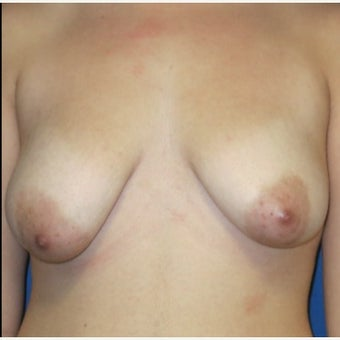 18-24 year old woman treated with Breast Lift before 2121634