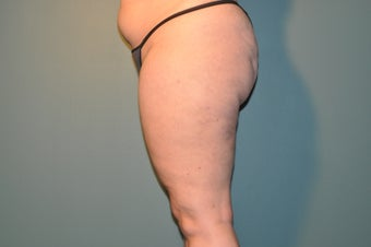 Cellulaze after 1098247