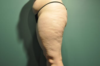 Cellulaze before 1098247