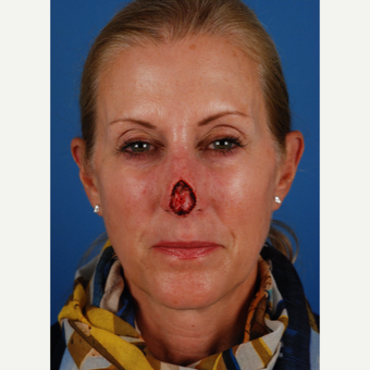 55 year old woman treated with Facial Reconstructive Surgery before 3827591