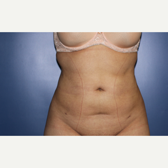 25-34 year old woman treated with Liposuction after 3695957
