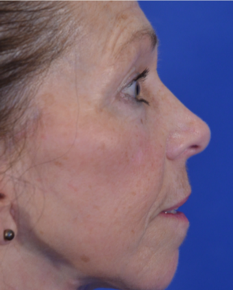 63 year old woman post Facelift after 3744000