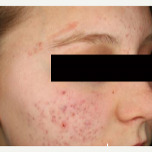 25-34 year old woman treated with Acne Scars Treatment before 3282811