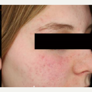 25-34 year old woman treated with Acne Scars Treatment after 3282811