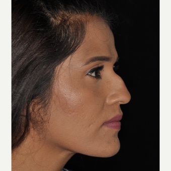 25-34 year old woman treated with Rhinoplasty 10 days post-op before 3452300