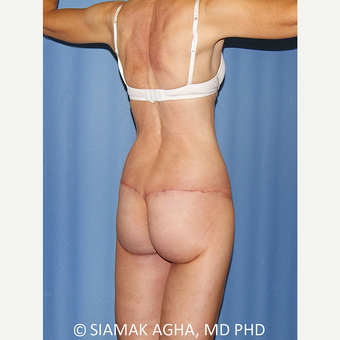 55-64 year old woman treated with Body Lift