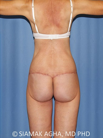 55-64 year old woman treated with Body Lift 2748774